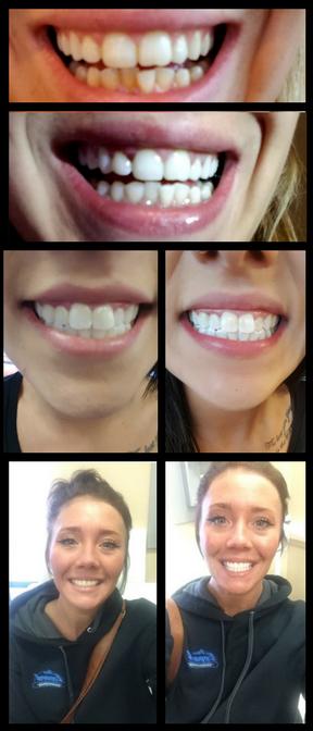 teethweb